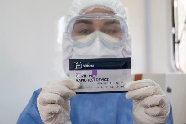 Test rápido Antígenos COVID19